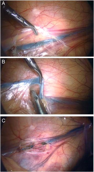 Intravenous methylene blue venography during laparoscopic ...